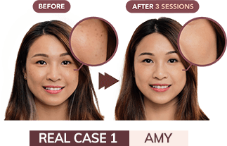 Amy Before/After